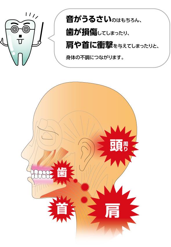 歯ぎしりの悩み